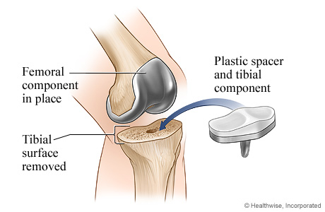 Knee replacement surgery: Tibial component