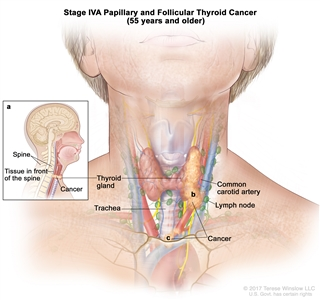 Stage IVA papillary and follicular thyroid cancer in patients 55 years and older; drawing shows cancer has (a) spread to tissue in front of the spine, (b) surrounded the common carotid artery, and (c) surrounded the blood vessels in the area between the lungs. Also shown are the thyroid gland, trachea, and lymph nodes.