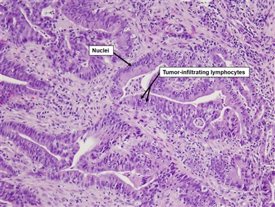 Histopathology slide of a colorectal tumor under a microscope, showing lymphocytes and cell nuclei in the tumor.