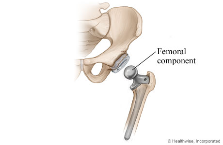 Hip replacement: Femoral component is placed