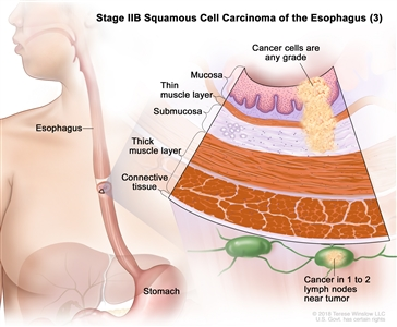Stage IIB squamous cell carcinoma of the esophagus (3); drawing shows the esophagus and stomach. An inset shows cancer cells of any grade in the mucosa layer, thin muscle layer, and submucosa layer of the esophagus wall. Also shown are the thick muscle layer and connective tissue layer of the esophagus wall and cancer in 1 lymph node near the tumor.