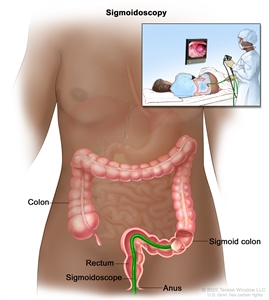 Sigmoidoscopy; shows sigmoidoscope inserted through the anus and rectum and into the sigmoid colon. Inset shows patient on table having a sigmoidoscopy.